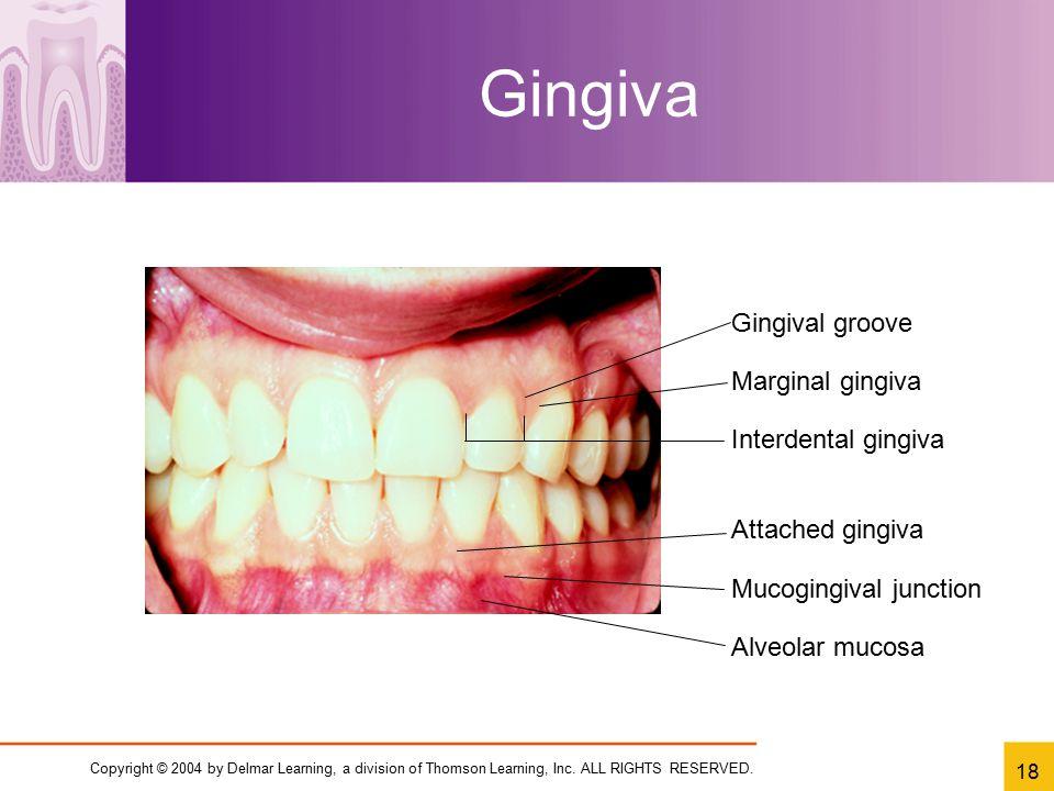Gingiva Gingival groove Marginal gingiva Interdental gingiva