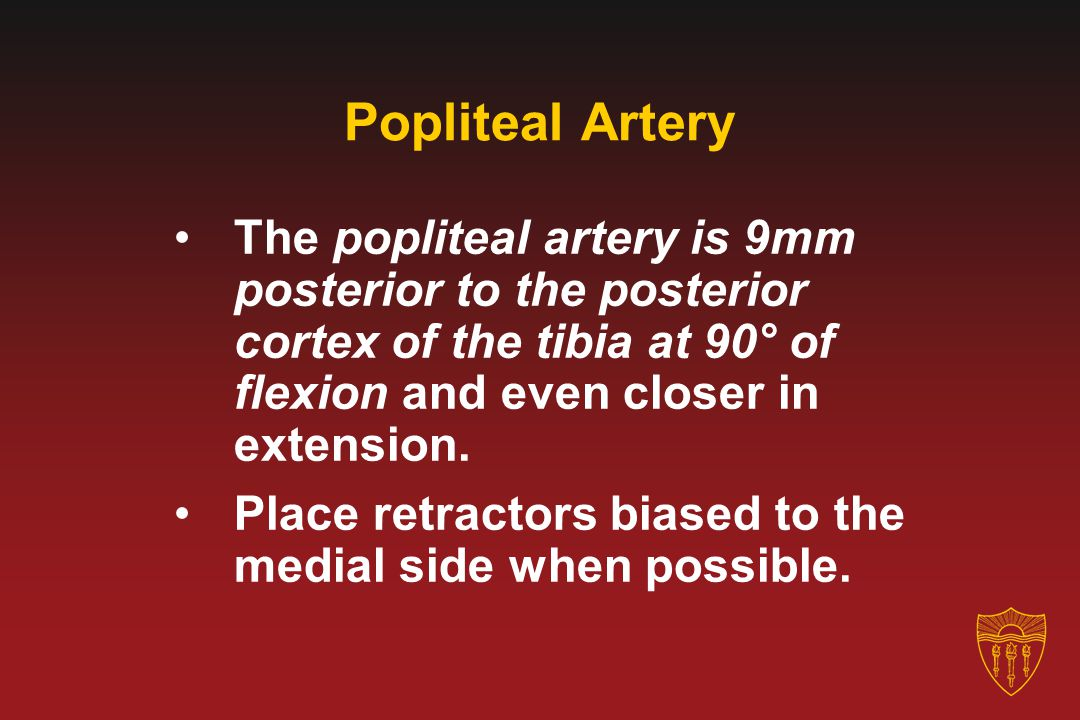 Popliteal Artery The popliteal artery is 9mm posterior to the posterior cortex of the tibia at 90° of flexion and even closer in extension.