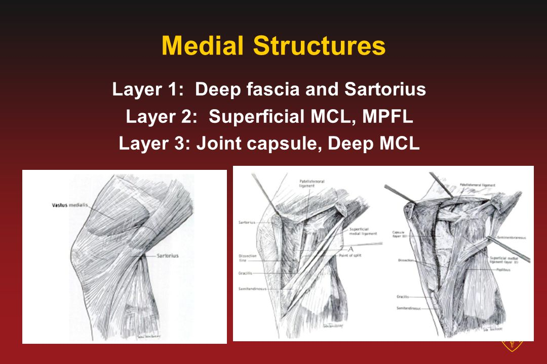 Medial Structures Layer 1: Deep fascia and Sartorius Layer 2: Superficial MCL, MPFL Layer 3: Joint capsule, Deep MCL