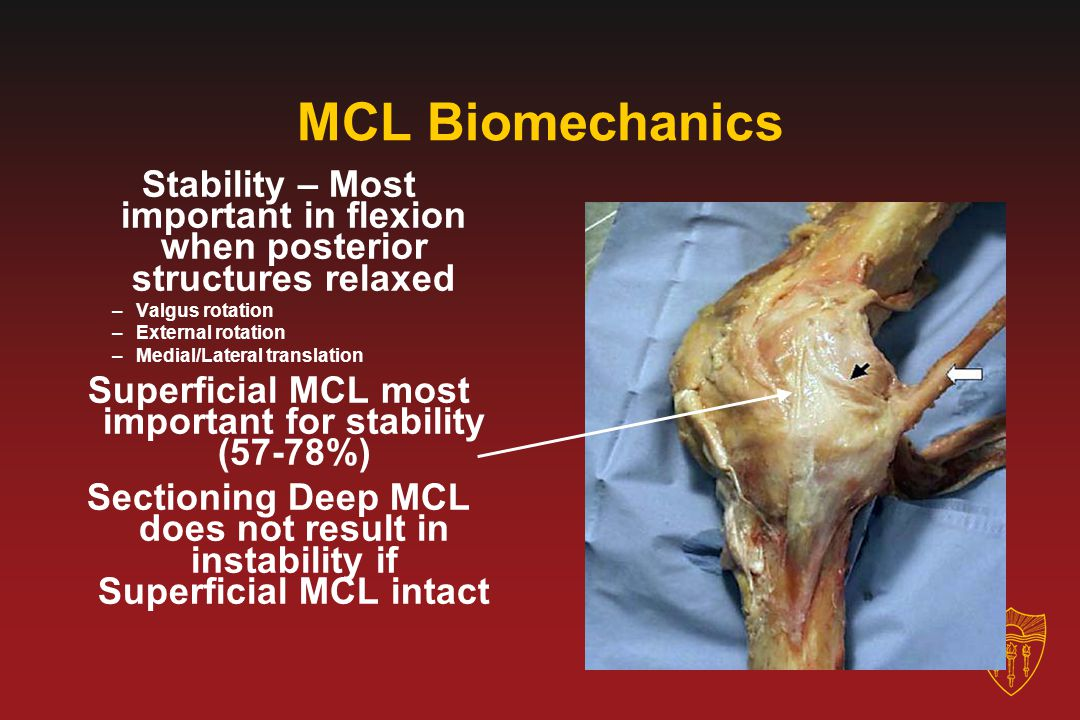 Superficial MCL most important for stability (57-78%)
