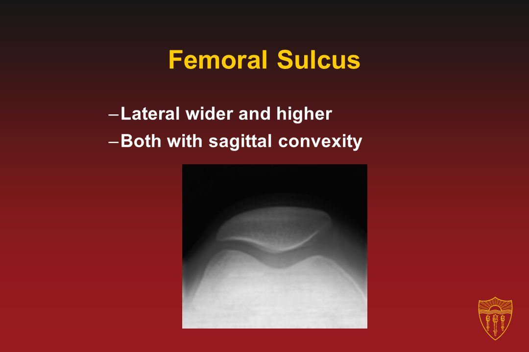 Femoral Sulcus Lateral wider and higher Both with sagittal convexity