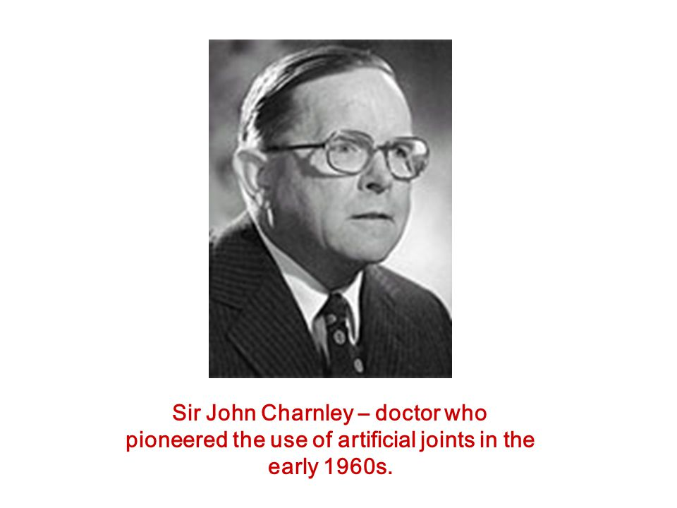 Sir John Charnley – doctor who pioneered the use of artificial joints in the early 1960s.