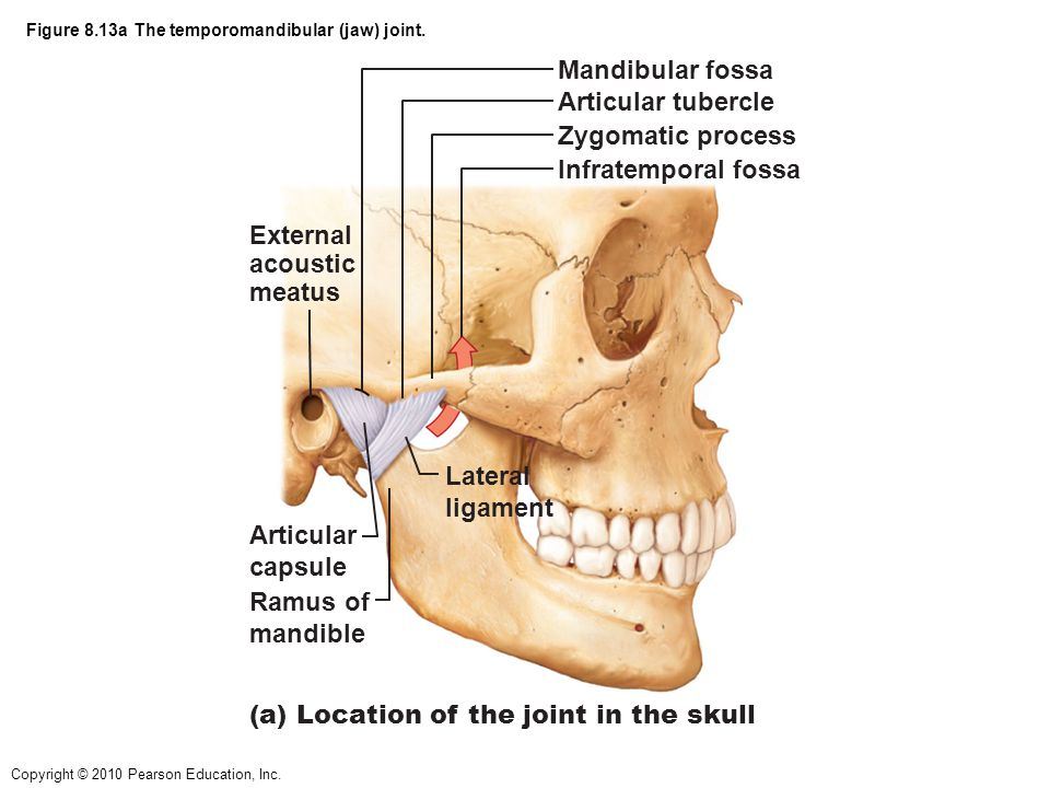 Figure 8.13a The temporomandibular (jaw) joint.