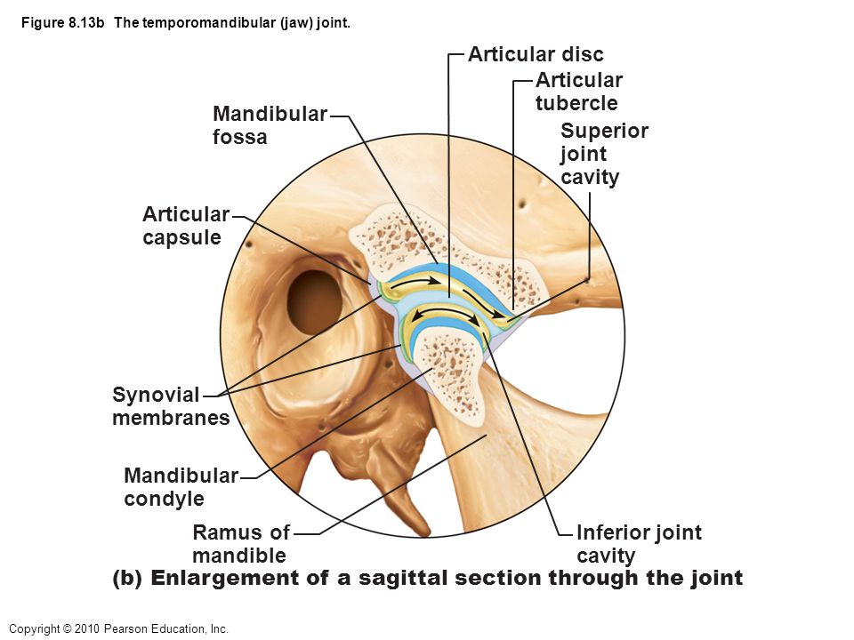 Figure 8.13b The temporomandibular (jaw) joint.