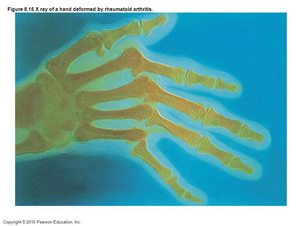 Figure 8.15 X ray of a hand deformed by rheumatoid arthritis.