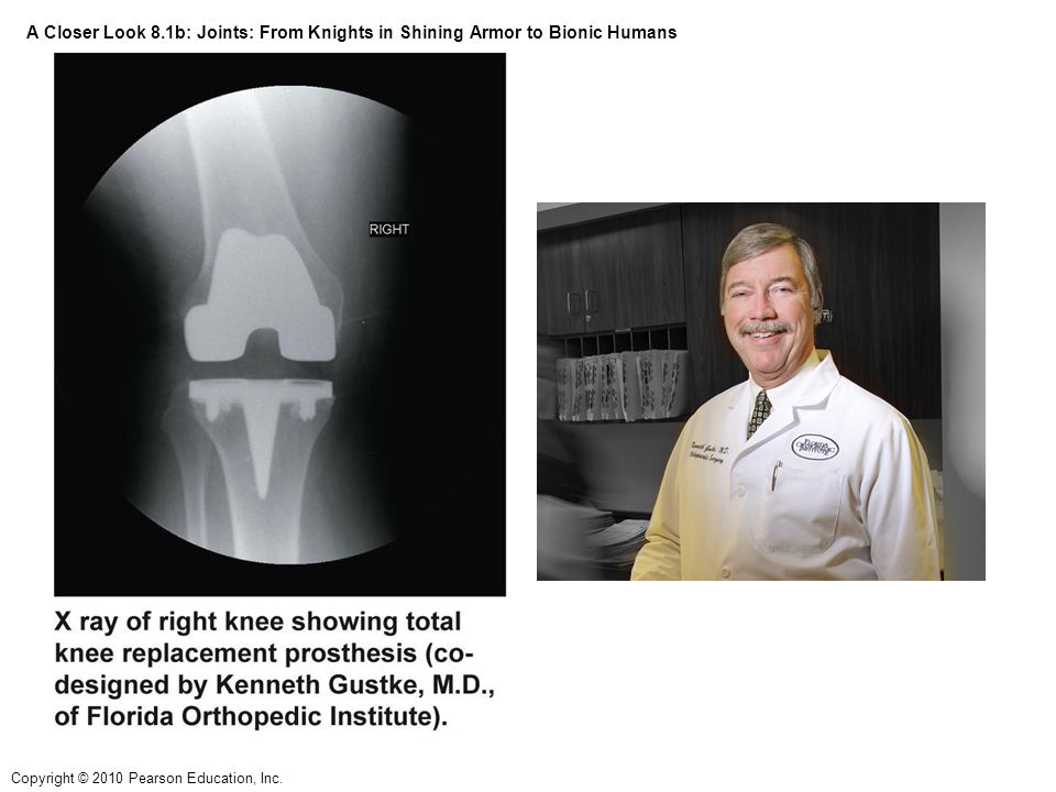 A Closer Look 8.1b: Joints: From Knights in Shining Armor to Bionic Humans