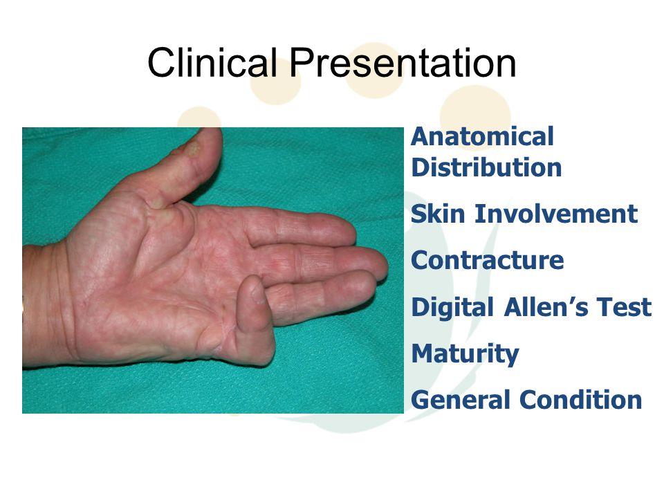 Clinical Presentation