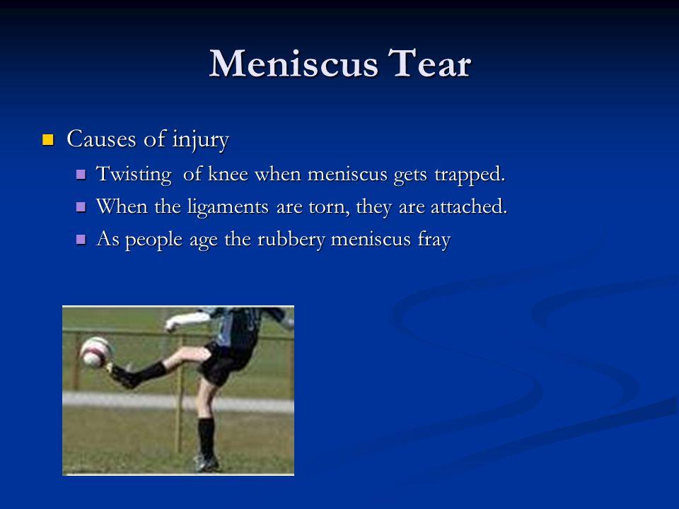 Meniscus Tear Causes of injury