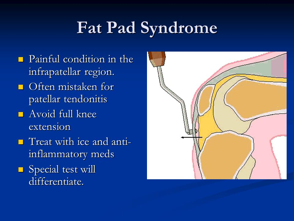 Fat Pad Syndrome Painful condition in the infrapatellar region.
