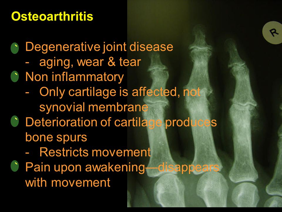 Osteoarthritis Degenerative joint disease. aging, wear & tear. Non inflammatory. Only cartilage is affected, not synovial membrane.