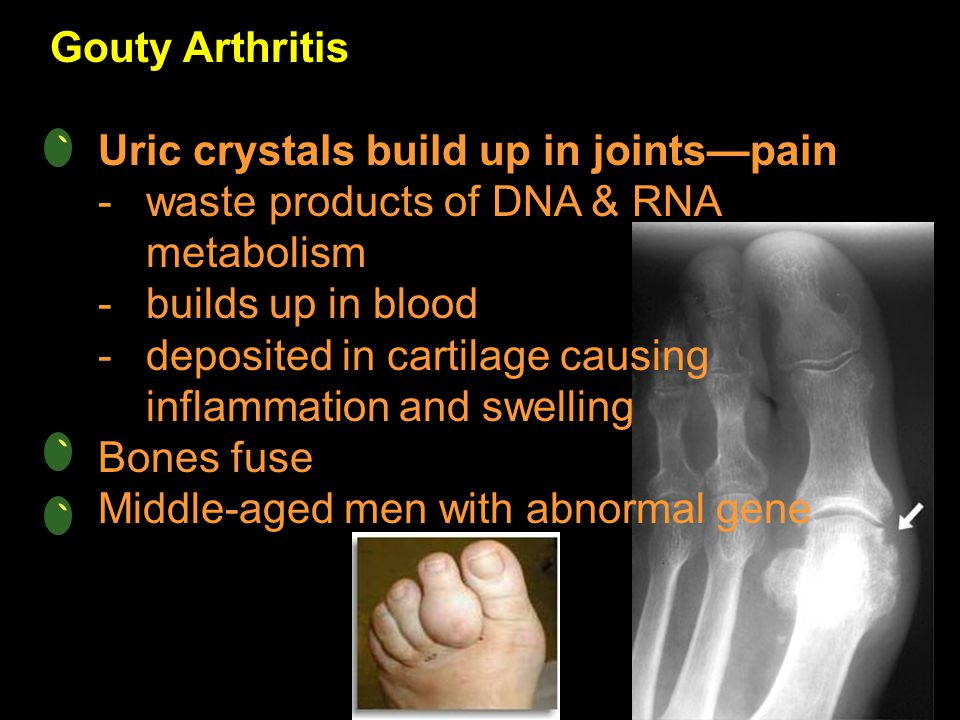 Gouty Arthritis Uric crystals build up in joints—pain. waste products of DNA & RNA metabolism. builds up in blood.