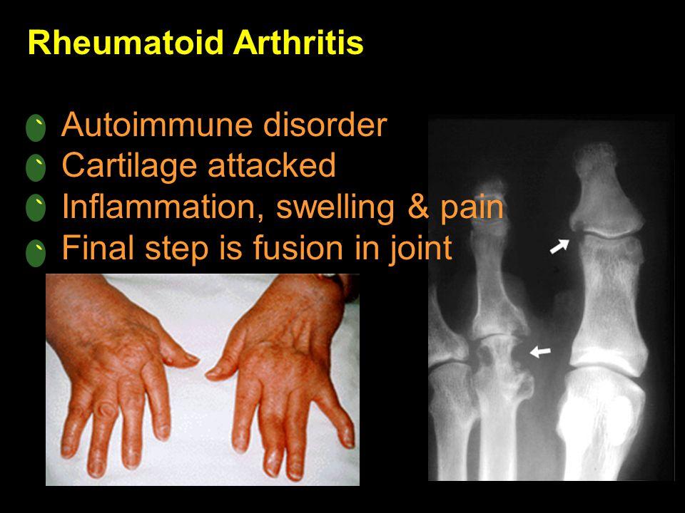 Rheumatoid Arthritis Autoimmune disorder. Cartilage attacked.
