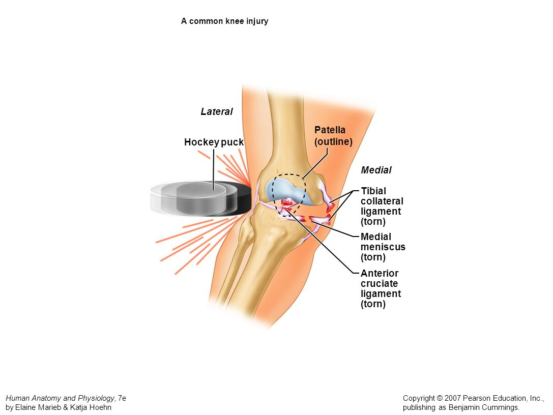 Lateral Patella (outline) Hockey puck Medial Tibial collateral