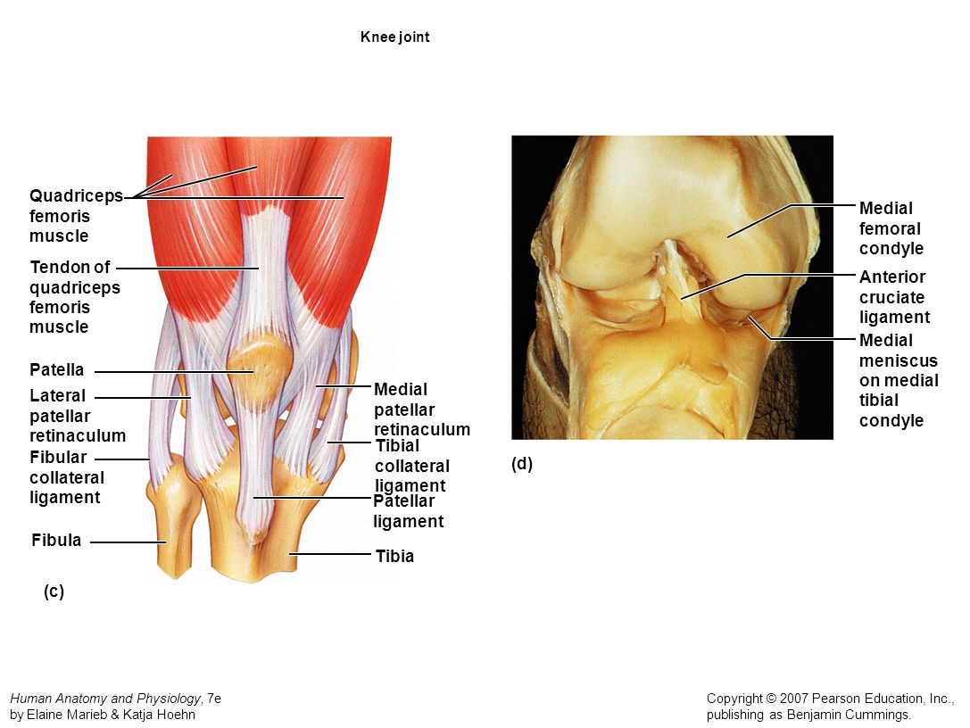 Quadriceps femoris muscle Medial femoral condyle Tendon of quadriceps