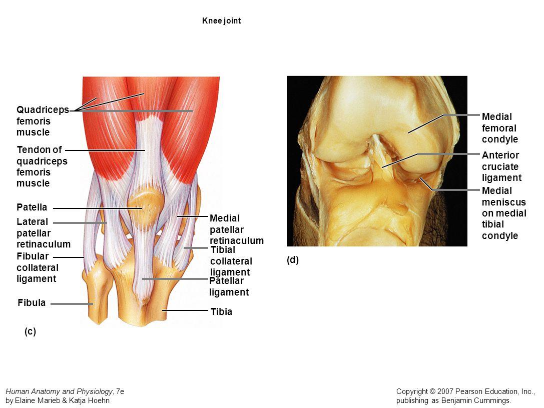 Quadriceps femoris muscle Medial femoral condyle Tendon of quadriceps