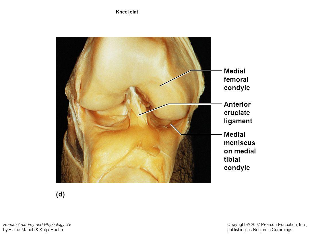 Medial femoral condyle Anterior cruciate ligament Medial meniscus