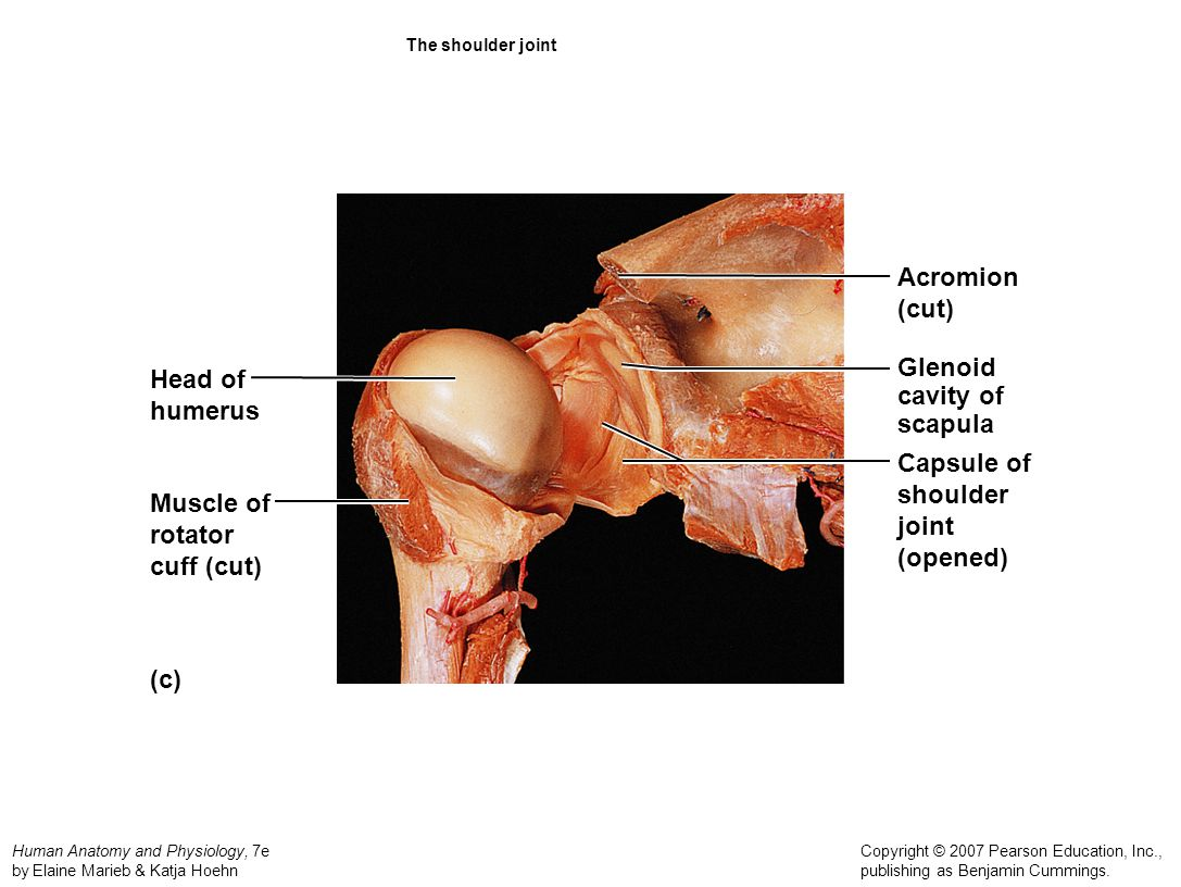 Acromion (cut) Glenoid Head of cavity of humerus scapula Capsule of
