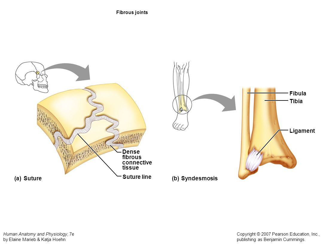 Fibula Tibia Ligament Dense fibrous connective tissue (a) Suture