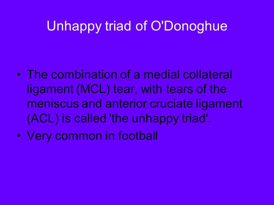 Unhappy triad of O Donoghue