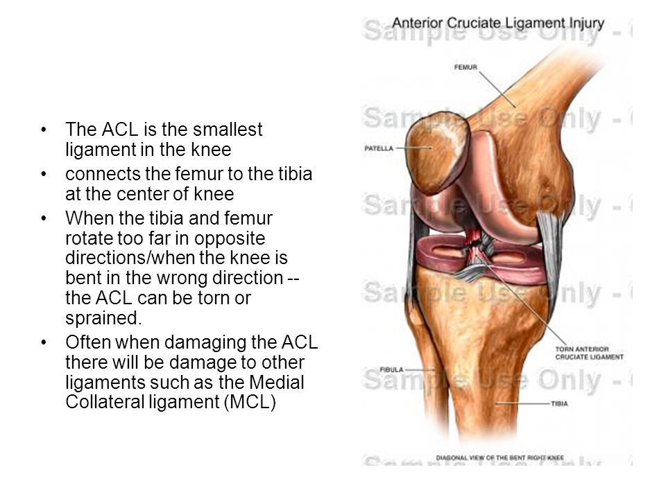 The ACL is the smallest ligament in the knee