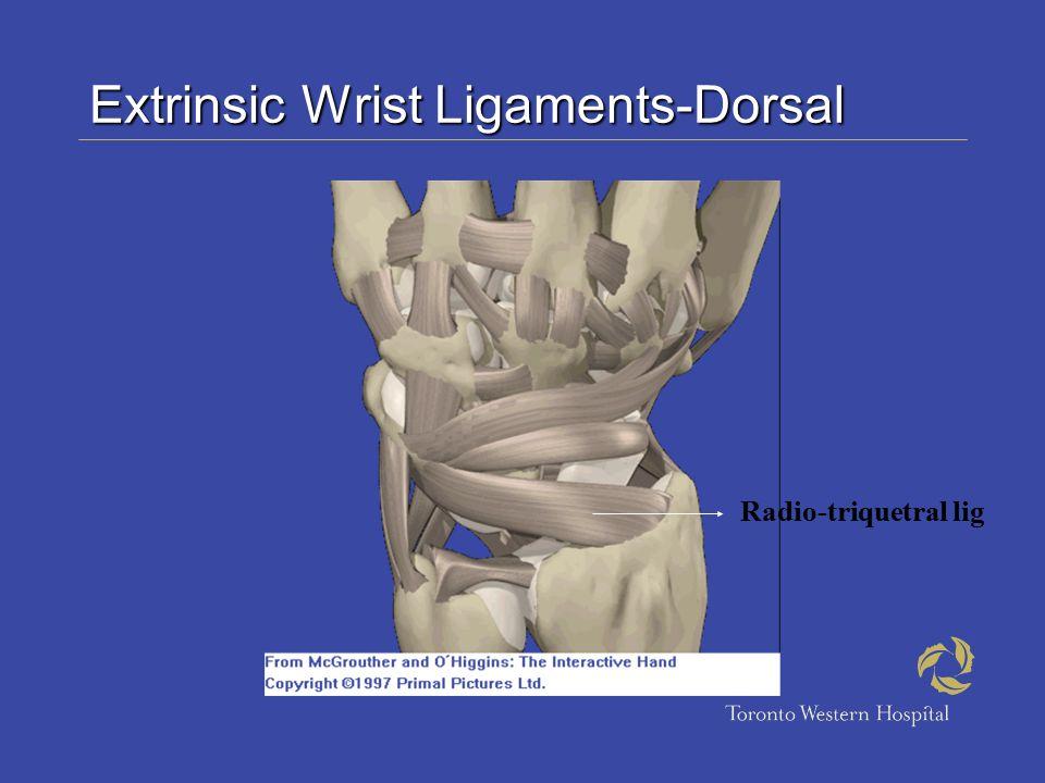 Extrinsic Wrist Ligaments-Dorsal