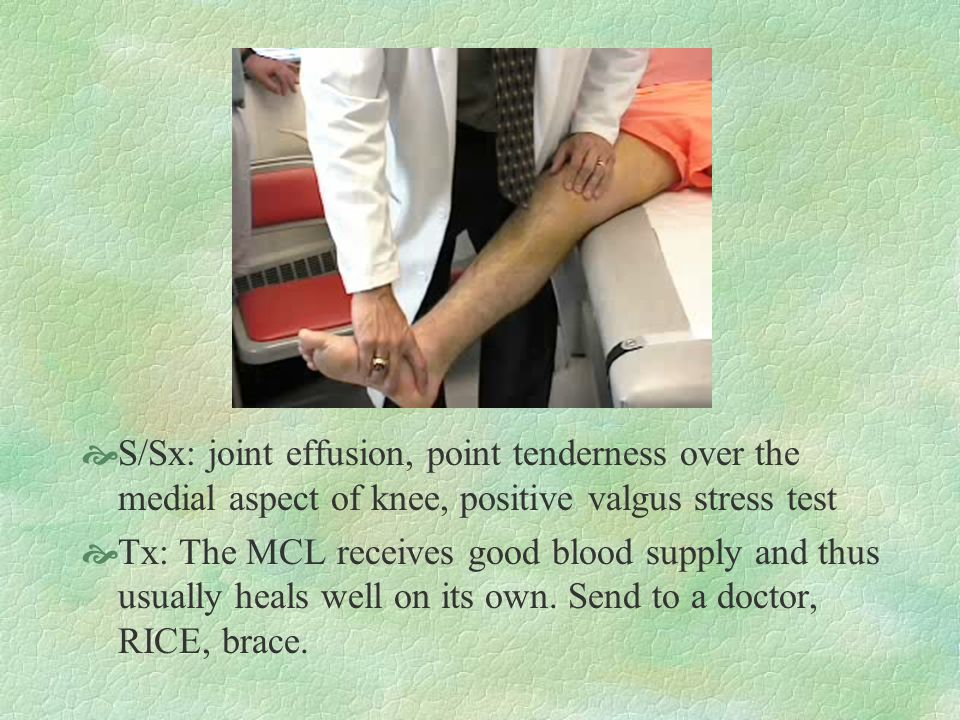 S/Sx: joint effusion, point tenderness over the medial aspect of knee, positive valgus stress test