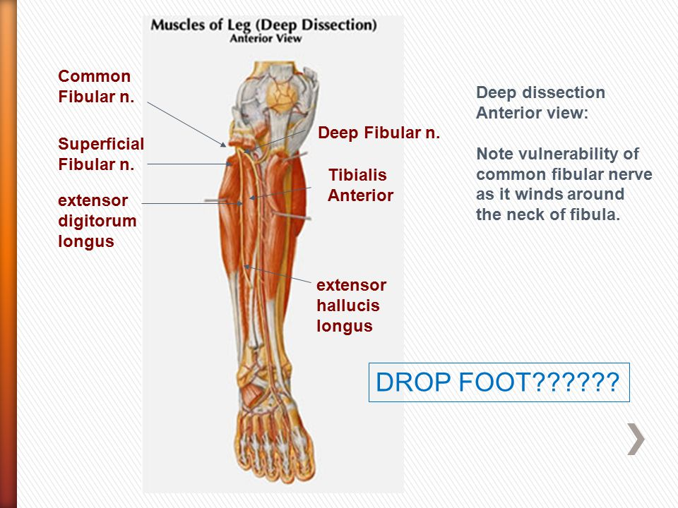 DROP FOOT Common Fibular n. Deep dissection Anterior view: