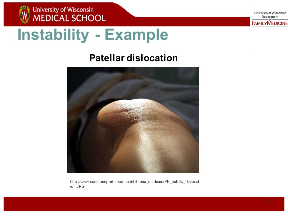 Instability - Example Patellar dislocation