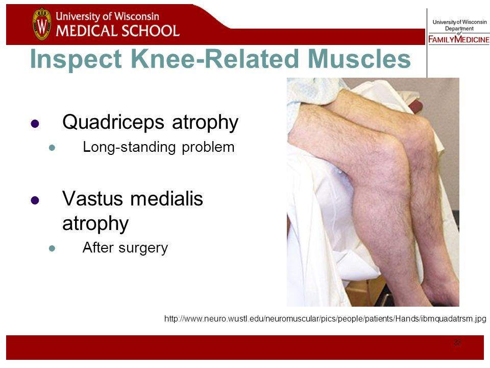 Inspect Knee-Related Muscles