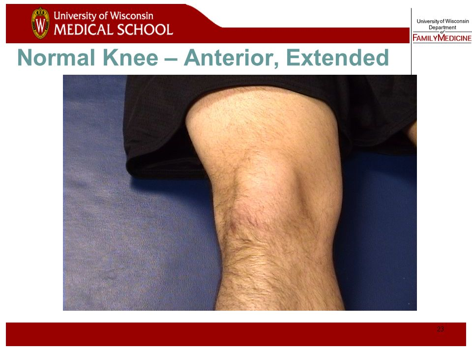 Normal Knee – Anterior, Extended