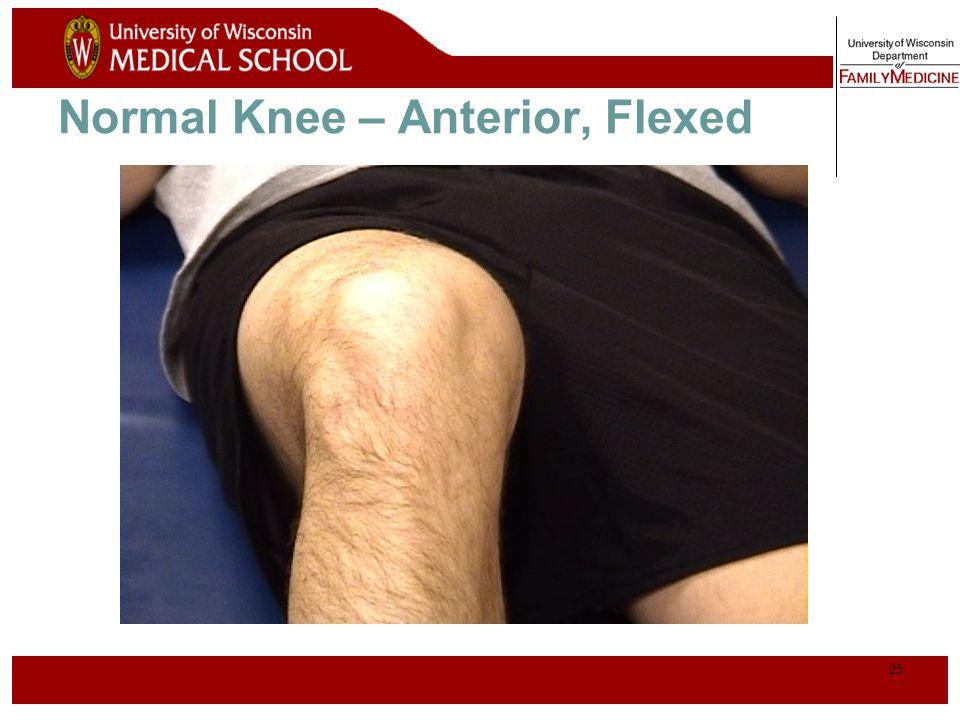 Normal Knee – Anterior, Flexed