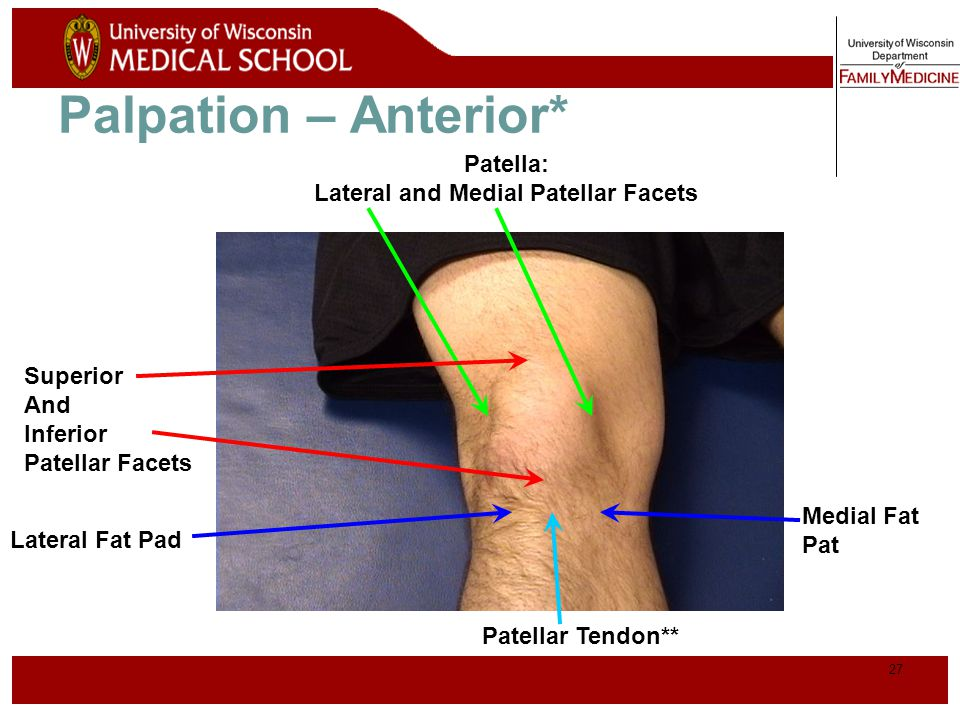Lateral and Medial Patellar Facets