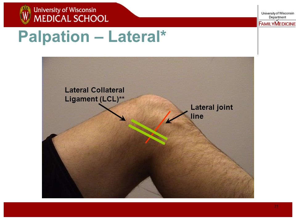 Palpation – Lateral* Lateral Collateral Ligament (LCL)** Lateral joint