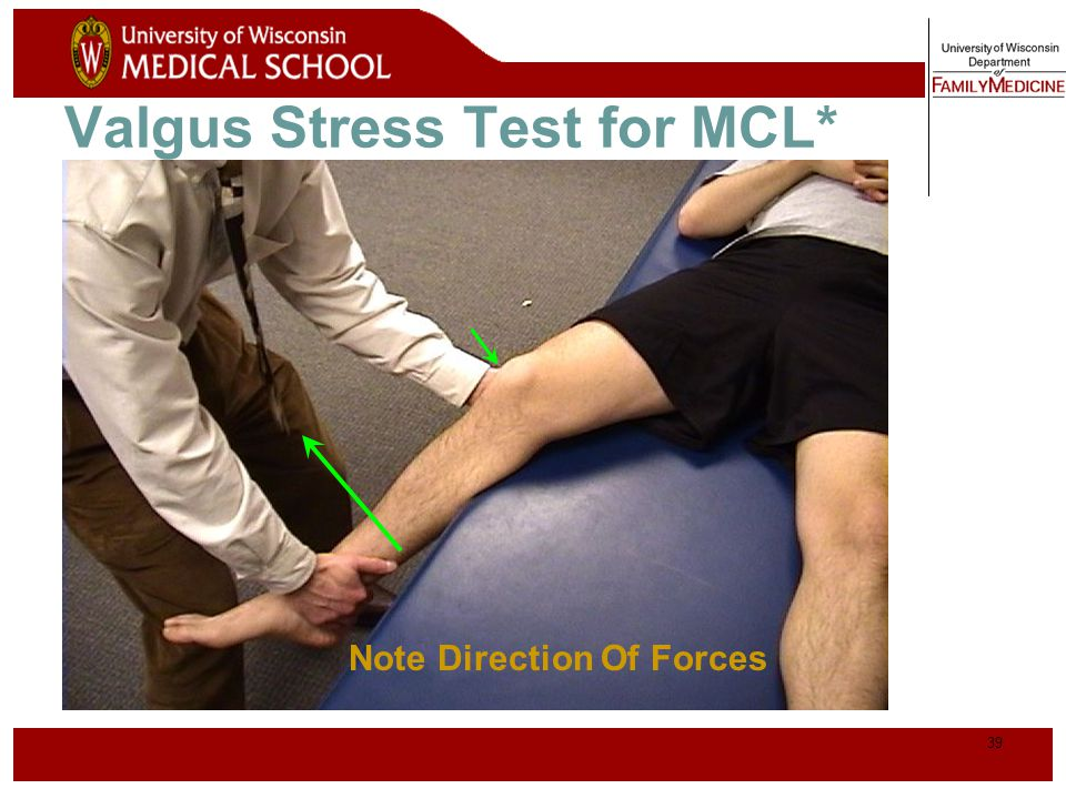 Valgus Stress Test for MCL*