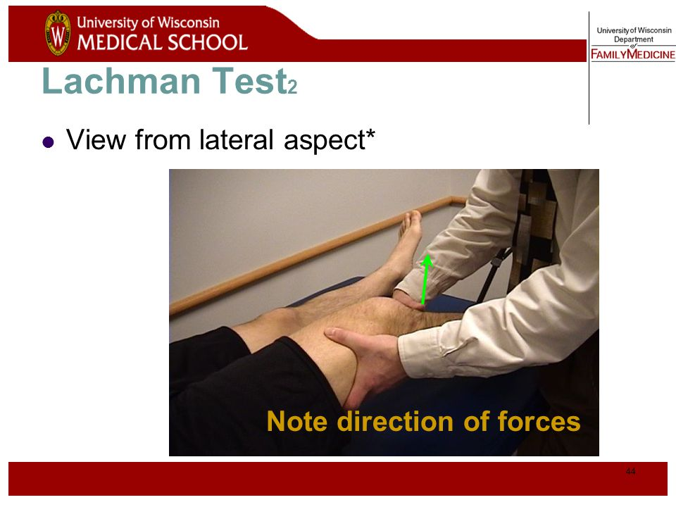 Lachman Test2 View from lateral aspect* Note direction of forces