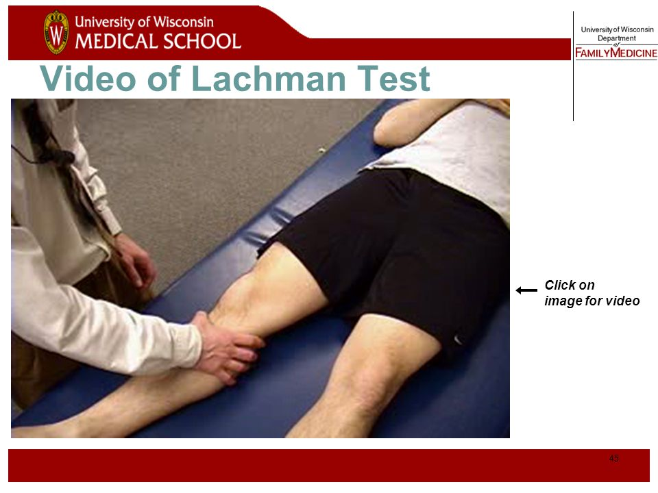 Video of Lachman Test Click on image for video