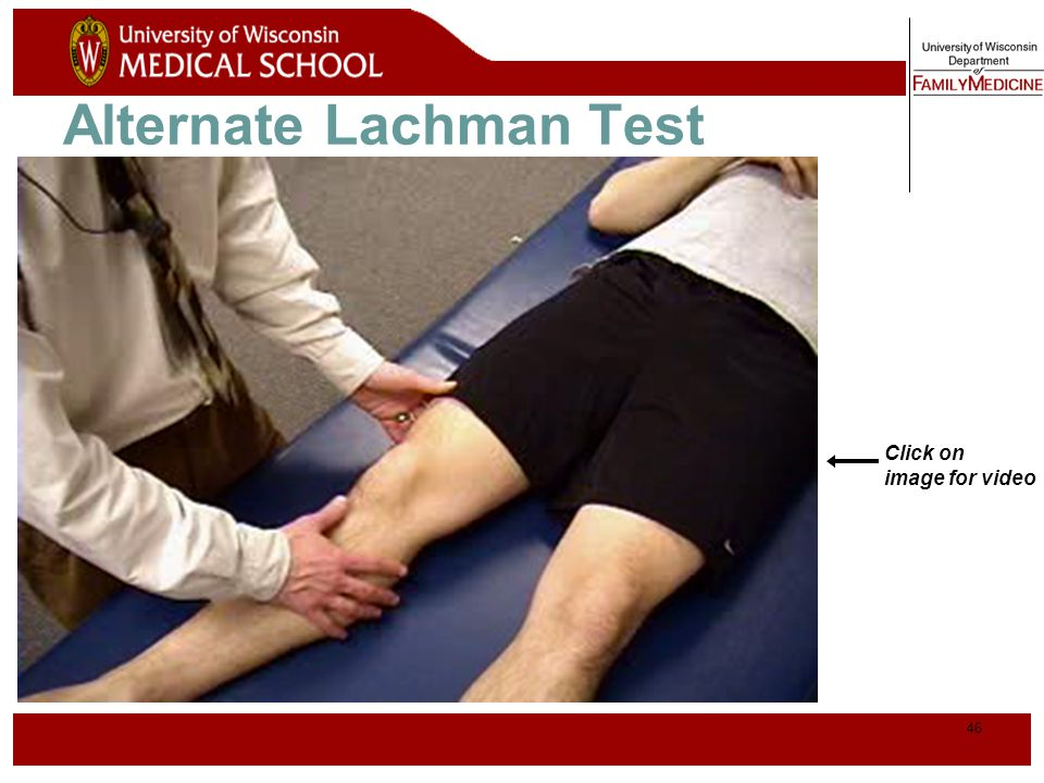 Alternate Lachman Test