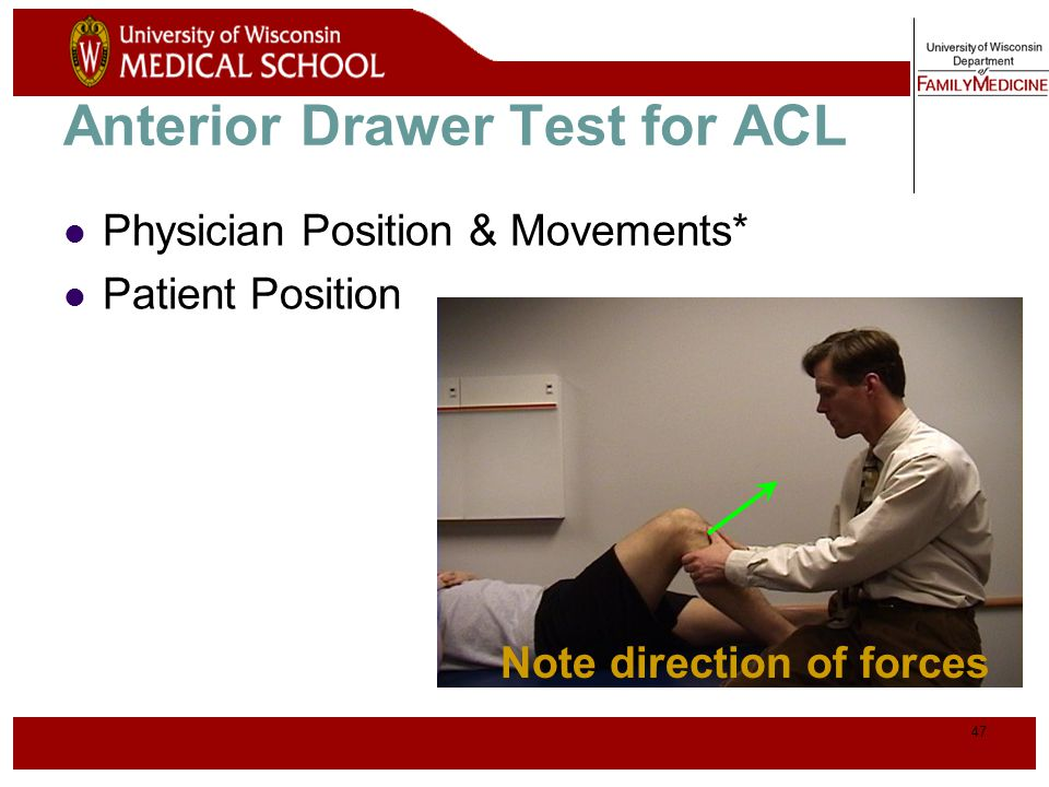 Anterior Drawer Test for ACL