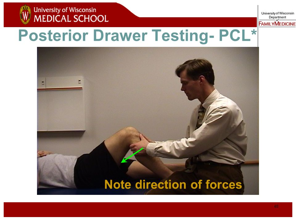 Posterior Drawer Testing- PCL*