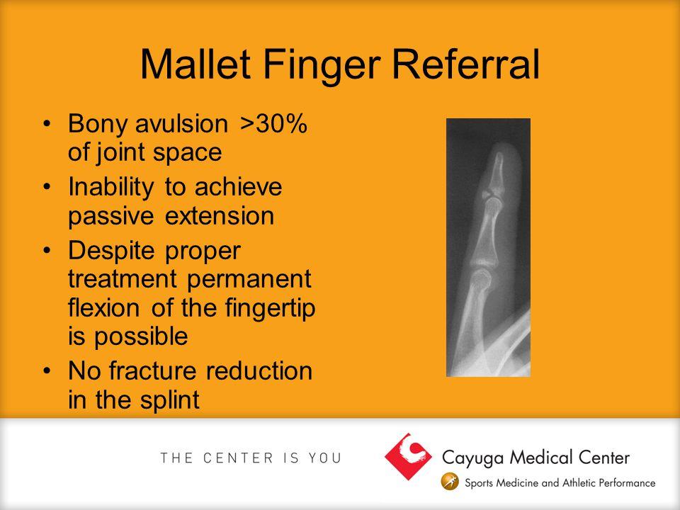 Mallet Finger Referral