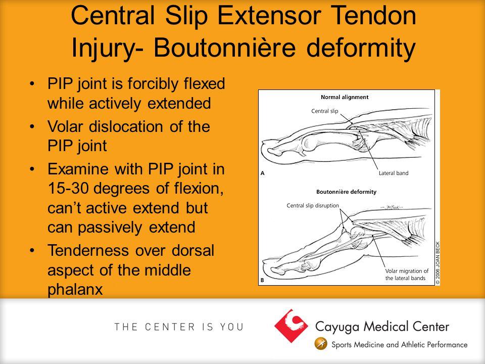 Central Slip Extensor Tendon Injury- Boutonnière deformity