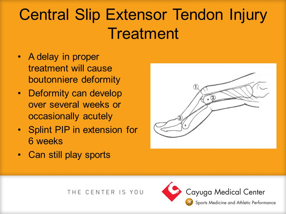 Central Slip Extensor Tendon Injury Treatment