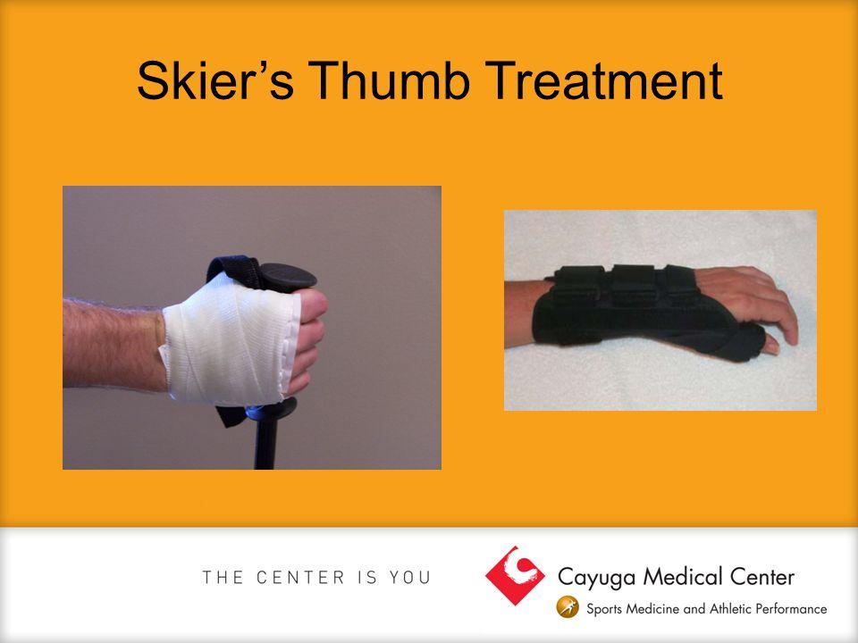 Skier's Thumb Treatment