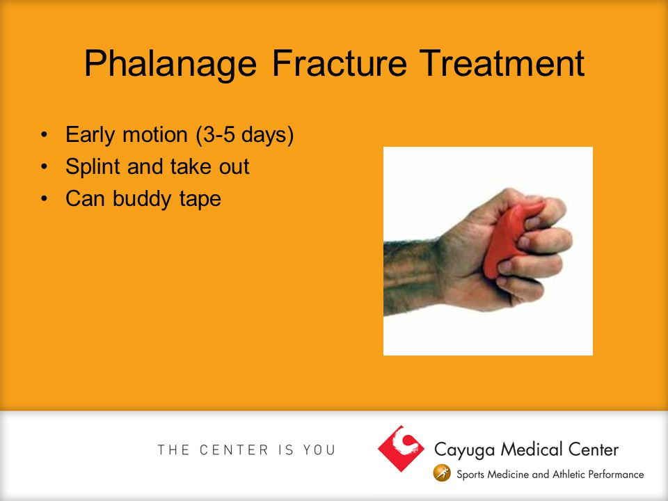 Phalanage Fracture Treatment