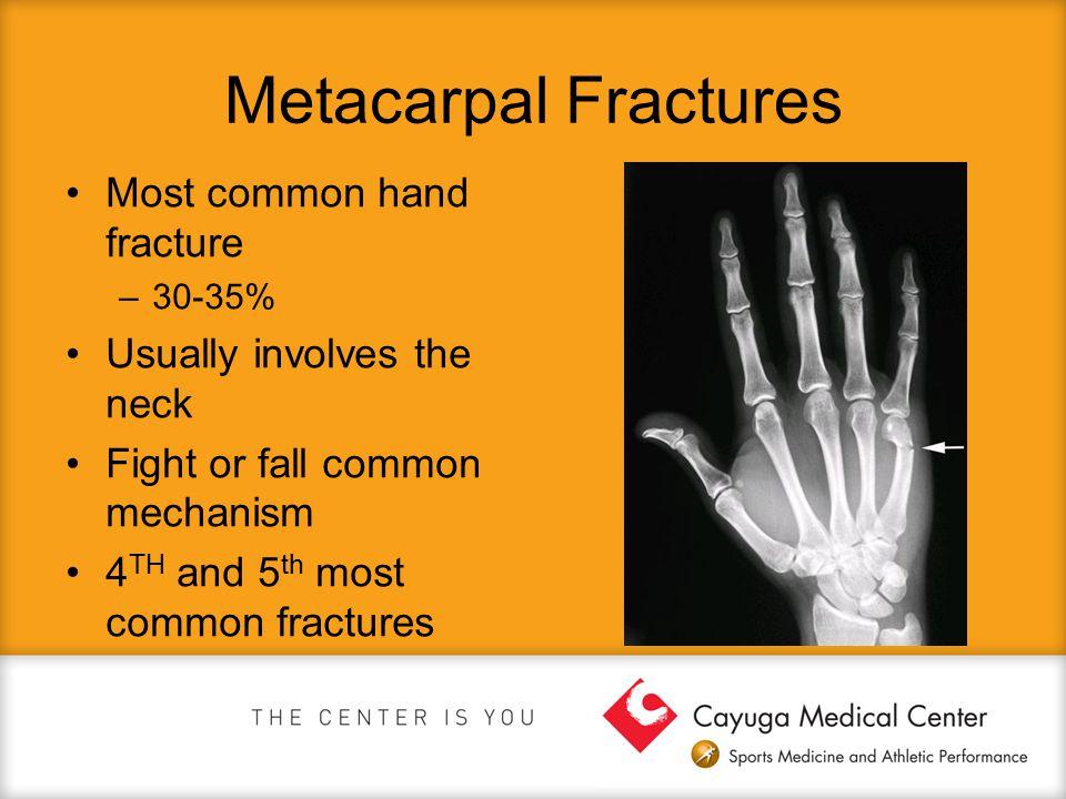 Metacarpal Fractures Most common hand fracture