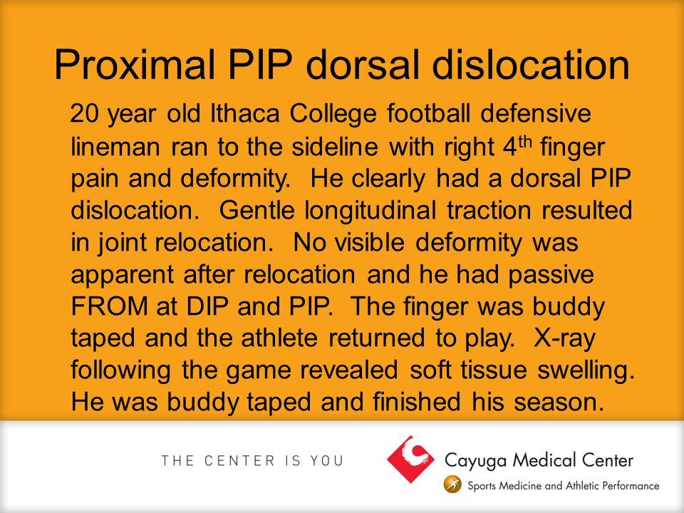 Proximal PIP dorsal dislocation