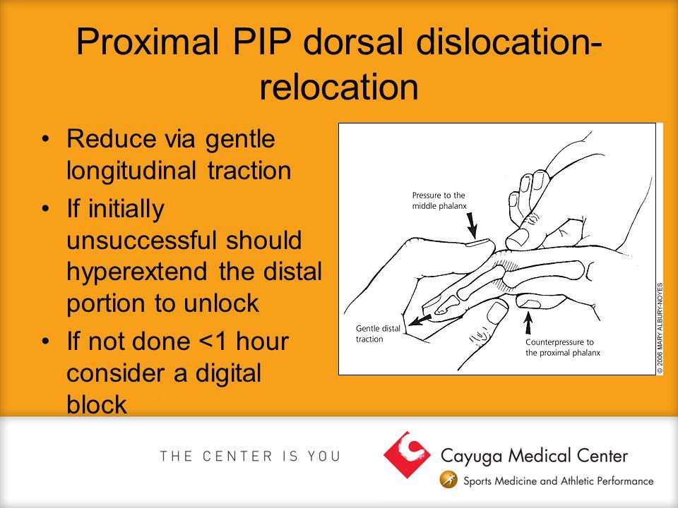 Proximal PIP dorsal dislocation- relocation