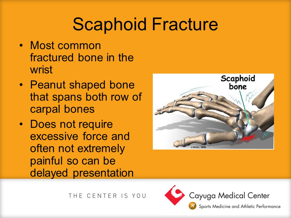 Scaphoid Fracture Most common fractured bone in the wrist