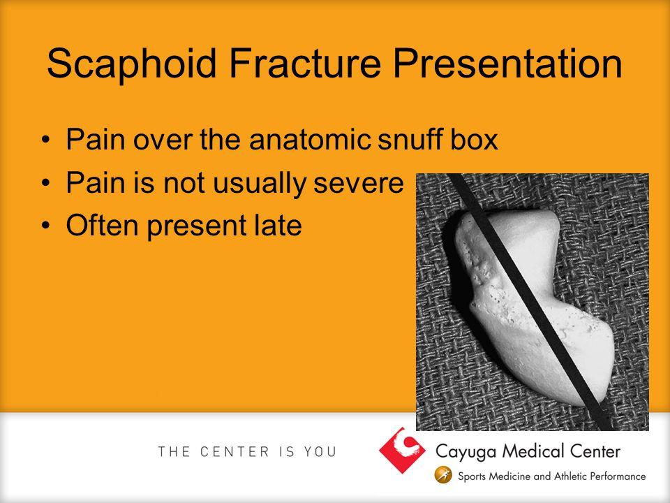 Scaphoid Fracture Presentation