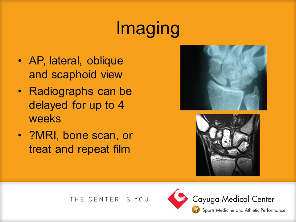 Imaging AP, lateral, oblique and scaphoid view